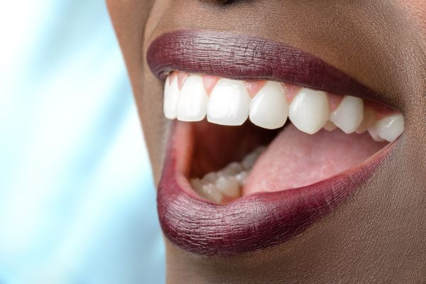 Can I Have Teeth Whitening Done If I Have A Dental Crown?